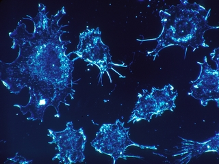 Groundbreaking cancer treatment approved