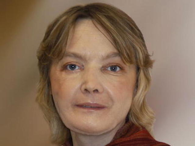 Frenchwoman who received world's 1st face transplant dies