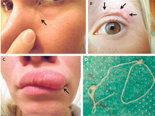 Woman's selfies capture moving lump on face